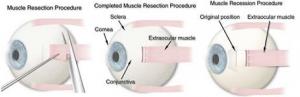 squint eye surgery