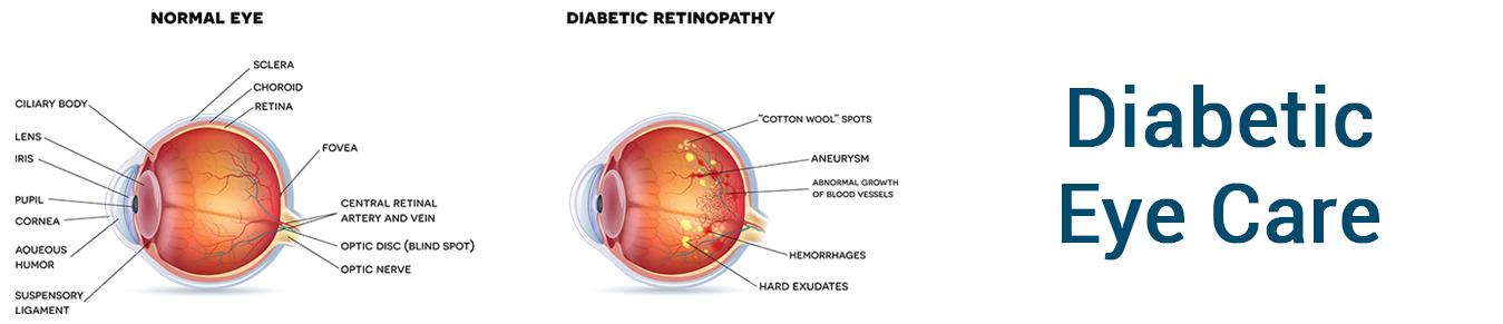 Diabetic-EyeCare
